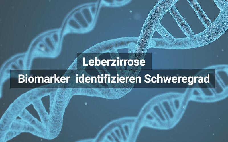 Leberzirrose Biomarker Diagnose