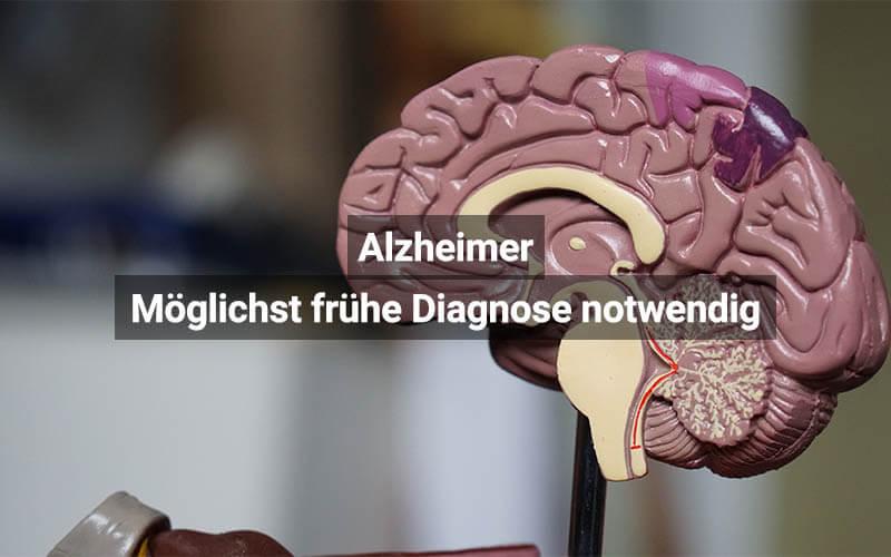 Alzheimer Diagnose Österreich